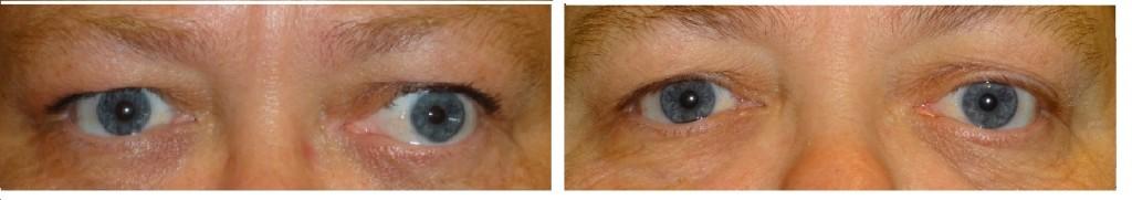 før og efter operation