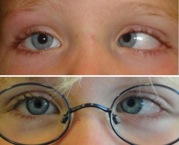 En anden variant af indadskelen, hvor briller kun delvist kan rette op på skelen