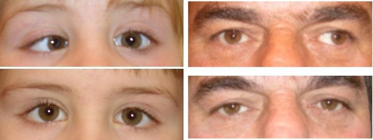 Indadskelen hos barn og udadskelen hos voksen, før og 2 måneder efter skeleoperation