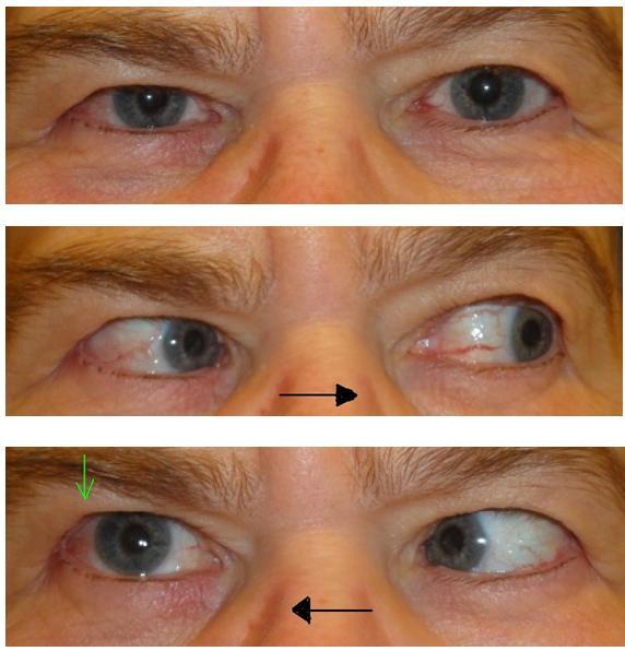 Lammelse af øjenmusklerne